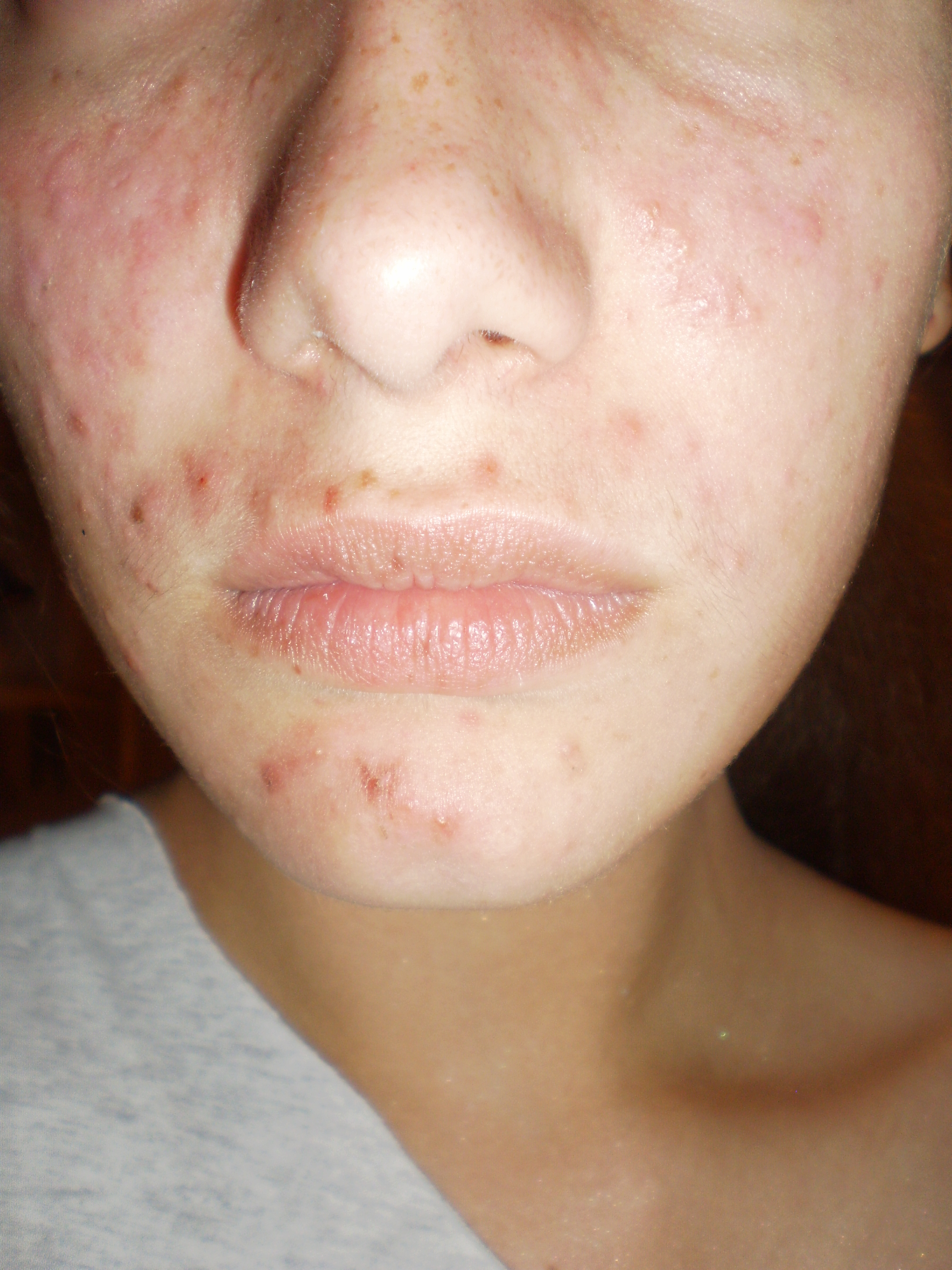 dry skin and acne