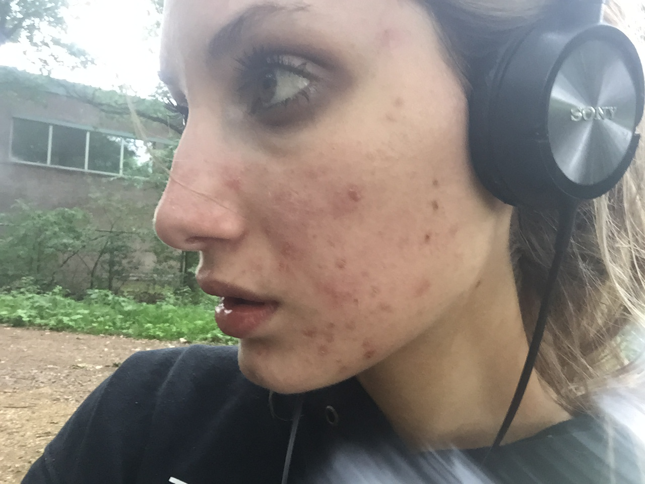 Dry Skin and Acne - LizzeL